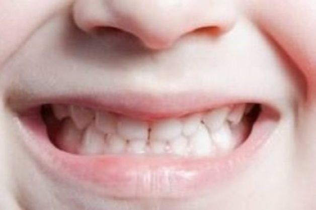 Prevenzione delle malocclusioni in età infantile